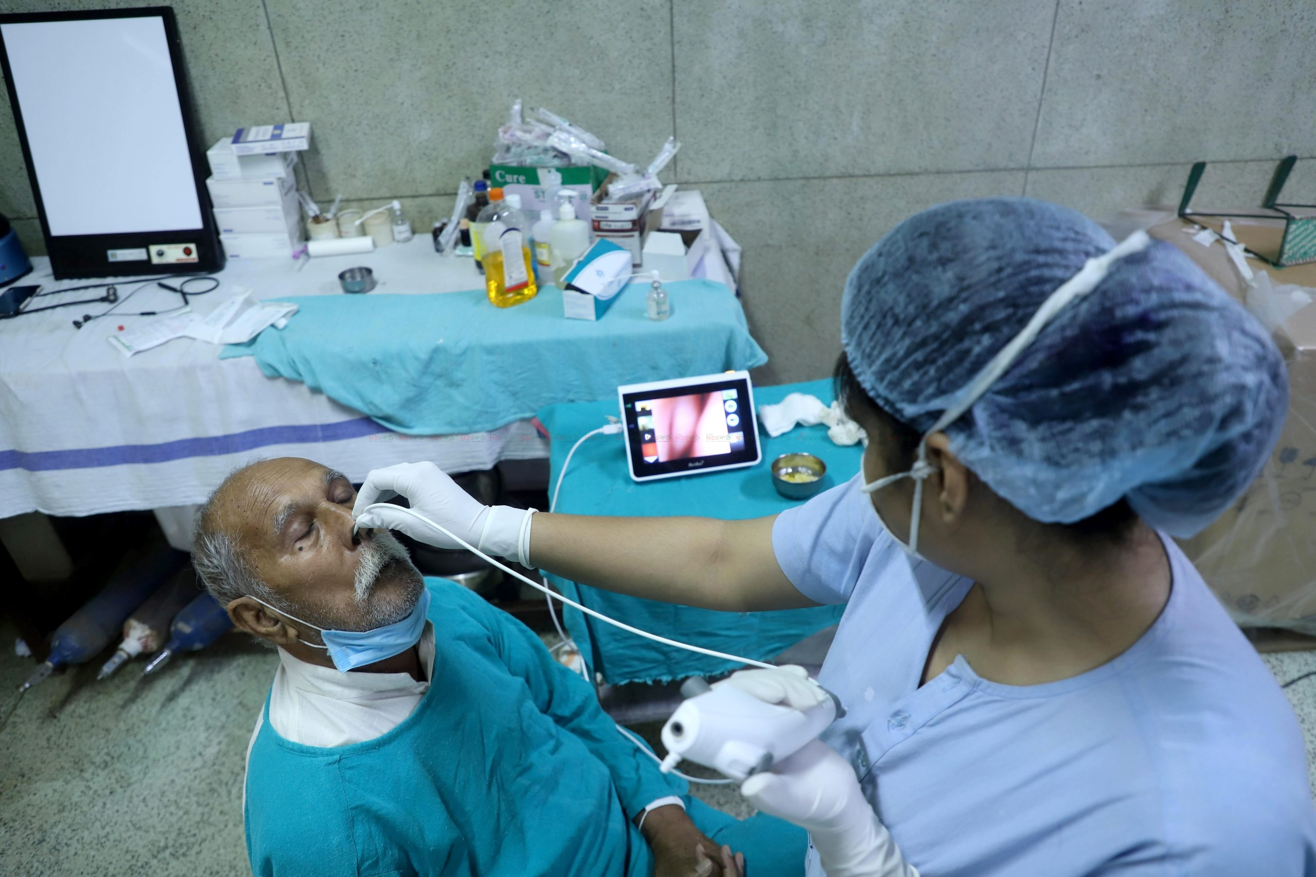 Doctor performs a diagnostic endoscopy on a patient to detect black fungus,